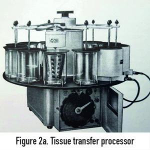 Tissue transfer processor