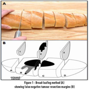 Figure 1 - Bread-loafing method (A) showing false negative tumour resection margins (B)