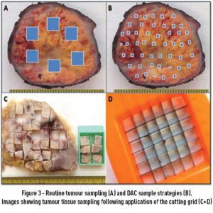 Figure 3 – Routine tumour sampling (A) and DAC sample strategies (B). Images showing tumour tissue sampling following application of the cutting grid (C+D)