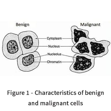 Characteristics of benign and malignant tumour cells
