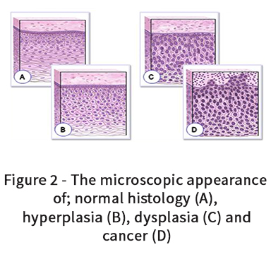 The microscopic appearance of; normal histology, hyperplasia, dysplasia and cancer