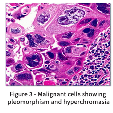Malignant cells showing pleomorphism and hyperchromasia