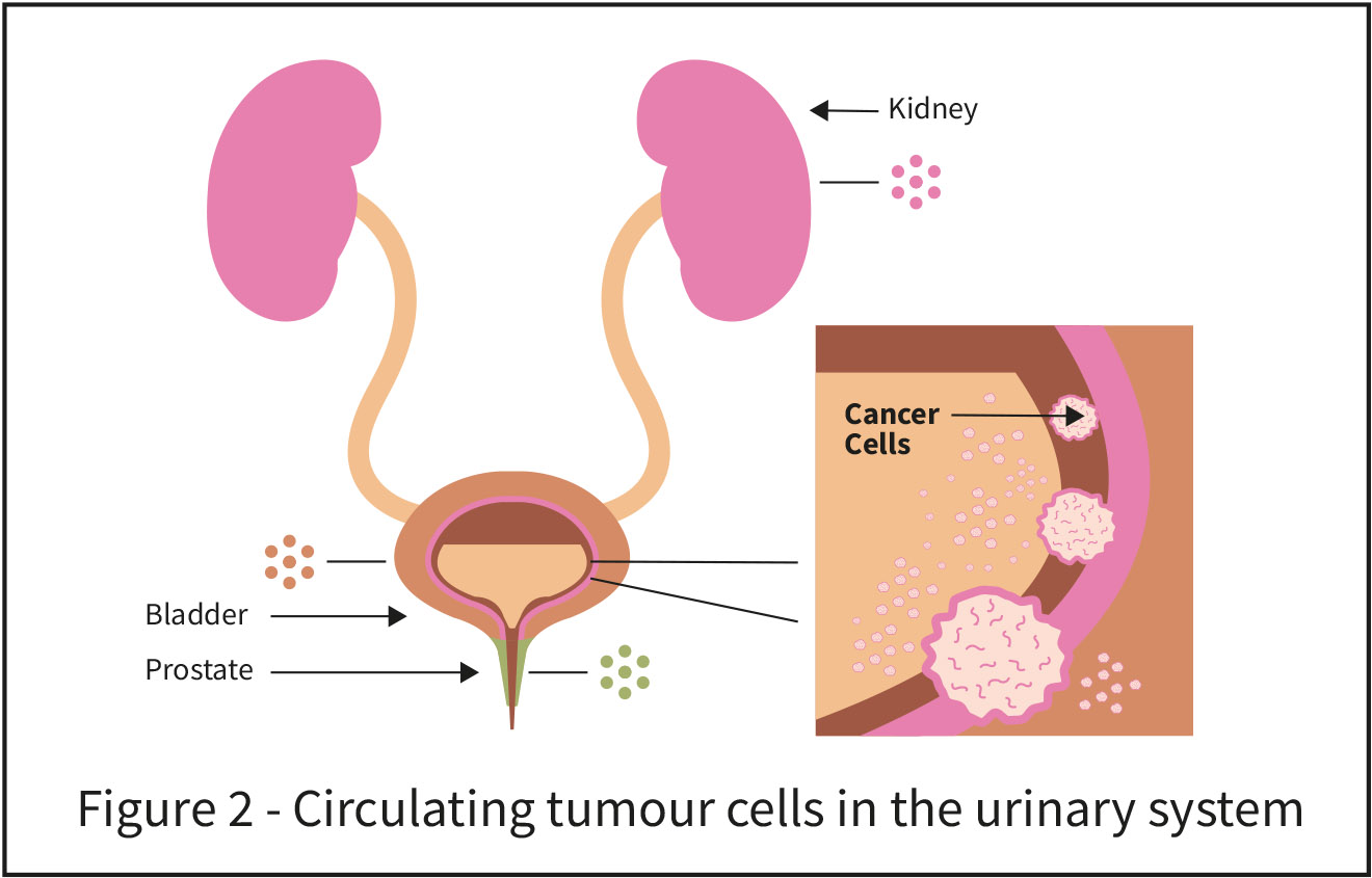 Circulating tumour cells in the urinary system