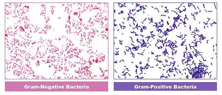 Gram-positive and Gram-negative